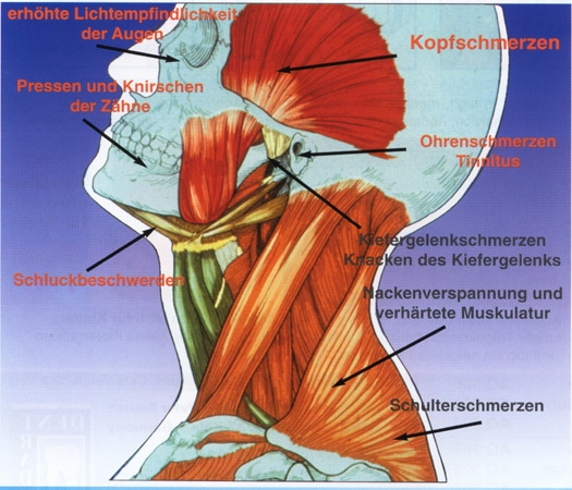 Kiefergelenkserkrankungen   Zahnarztpraxis Dr. Joachim Gehrke