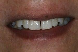 Zahnfarbene Kunststofffüllungen - MockUp zur Simulation